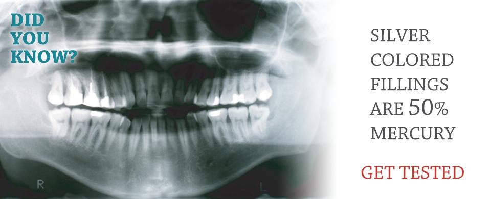歯の詰めの中には50%の有毒水銀が含まれている事も。水銀検査を受けましょう!